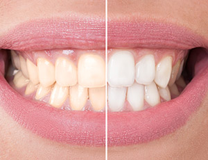 Closeup smile half before and half after teeth whitening