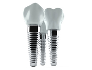 three dental implant posts with crowns