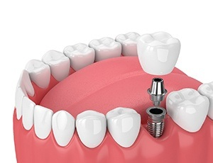 dental implant in Richardson with abutment and crown