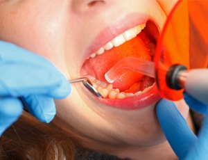 dentist bonding patients' teeth