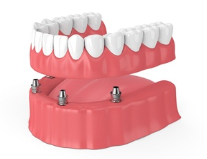 3D rendering of implant-retained dentures