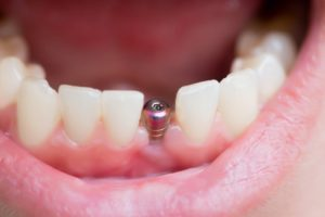 mouth open with dental implant