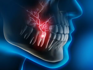 Image showing a painful, infected tooth