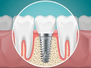 Illustration of a dental implant in a jawbone