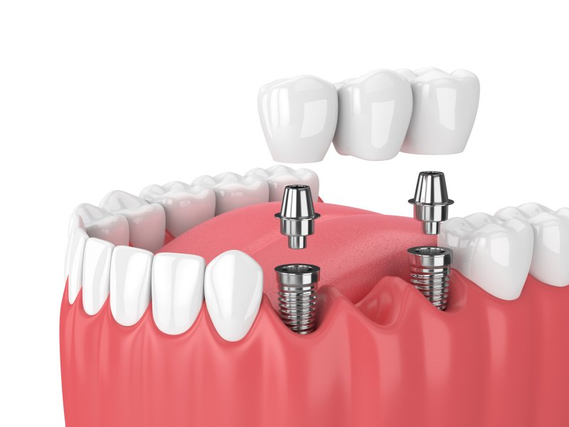 Diagram highlighting types of dental implants in Richardson